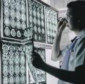Операции при эпилепсии в Израиле
