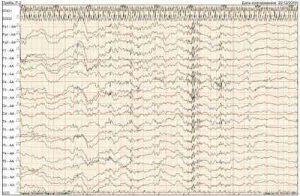 Доброкачественная эпилепсия детства: Как лечить?