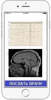Консультация эпилептолога онлайн ЭЭГ МРТ