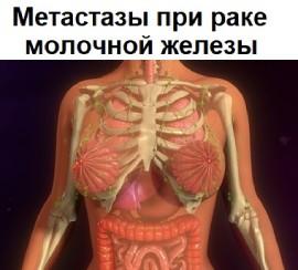 Что поражают метастазы при раке молочной железы чаще всего