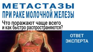 Что поражают метастазы при раке молочной железы чаще всего и какое лечение необходимо