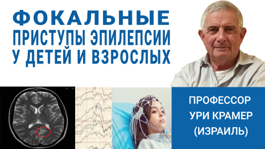 Фокальные приступы эпилепсии