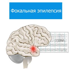 Фокальная-эпилепсия